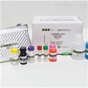 白喉类毒素IgG抗体检测试剂盒 酶联免疫法